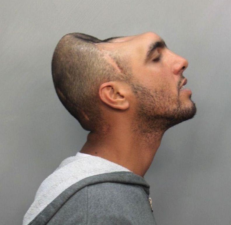 Carlos 'Halfy' Rodriguez, also known as Sosa, lost half his brain in a crash.