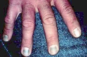 Quinacrine Green Nails