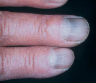 tetracycline-nail-discoloration