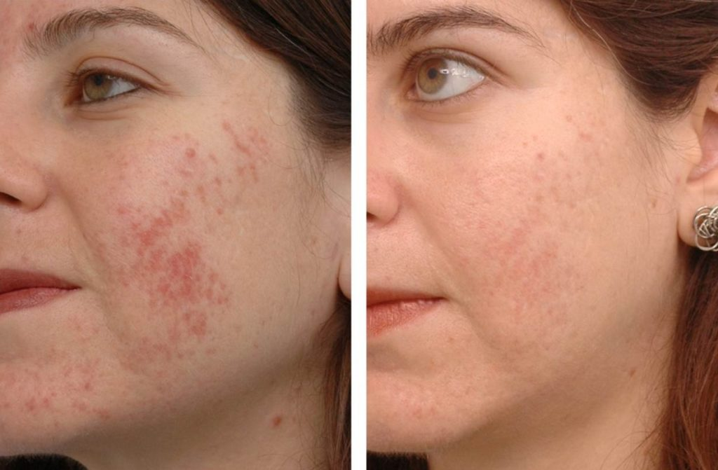 apple cider vinegar fades acne spots
