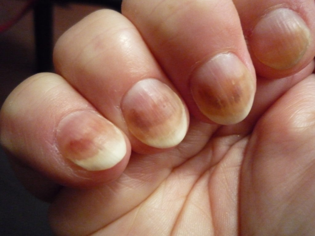 Brown Nails Health Problems