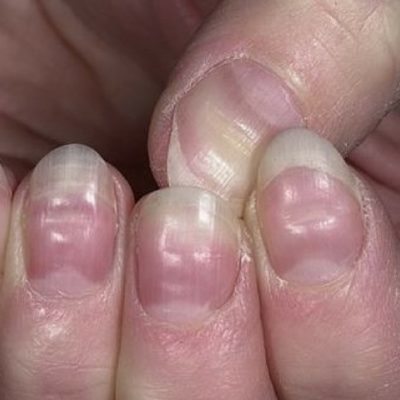fingernail health problems