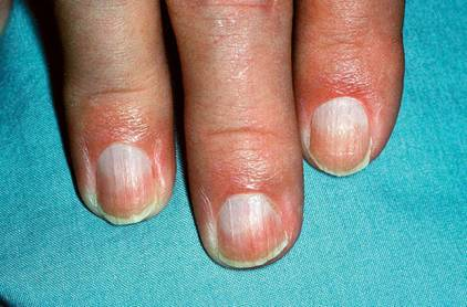 Half and Half Nails Caused By Kidney Failure