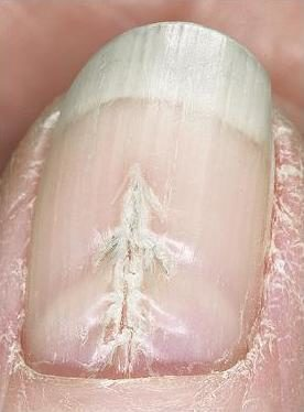 Median nail dystrophy