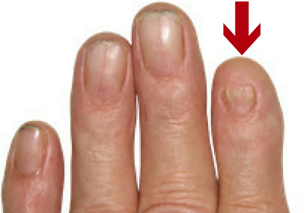 Nail Patella Syndrome