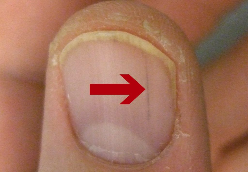 splinter hemorrhages are red or brown lines under your nail
