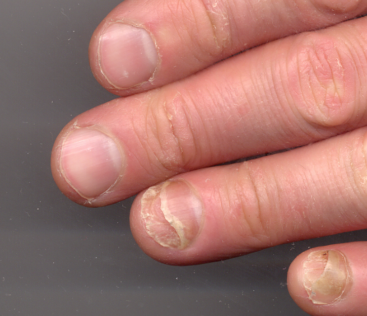 Nails Detaching From Nail Bed