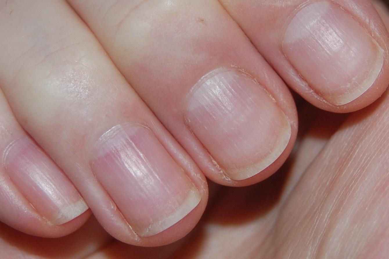 Бороздки на ногтях рук